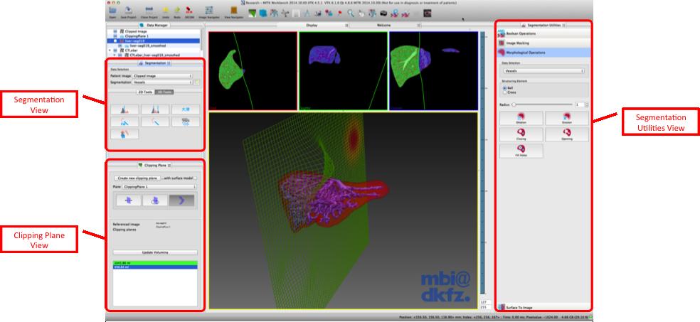 Medical Imaging Interaction Toolkit: The Segmentation Plugin