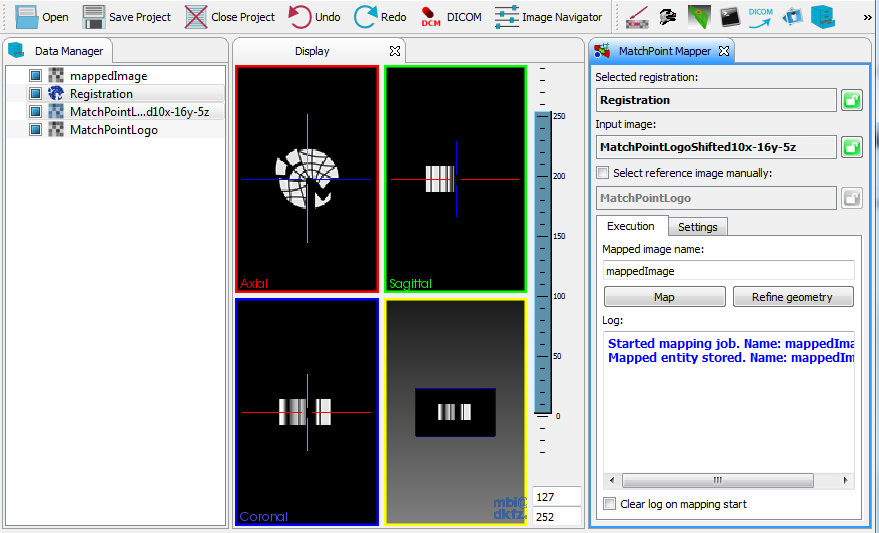 Medical Imaging Interaction Toolkit: The MatchPoint Image