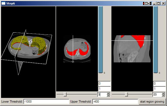 Medical Imaging Interaction Toolkit: MITK Tutorial - Step 6