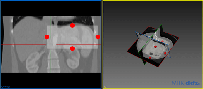 Medical Imaging Interaction Toolkit: Image Cropper Plugin