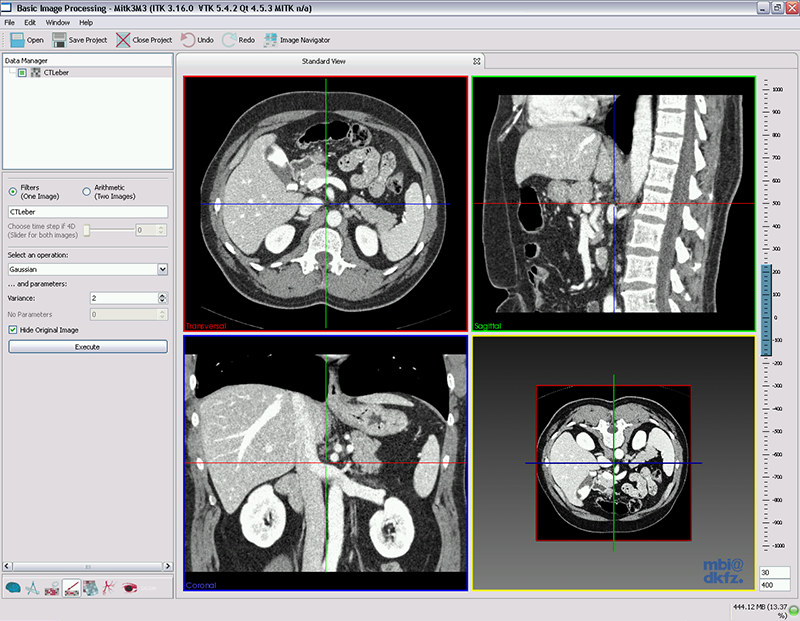Medical Imaging Interaction Toolkit: The Basic Image